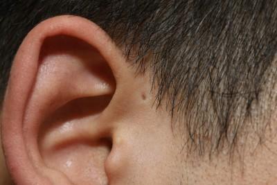 写真9:耳の前に小さな穴が見られる。