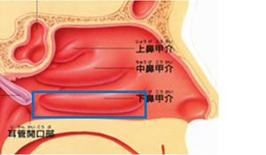 図1:下鼻甲介粘膜の凝固範囲