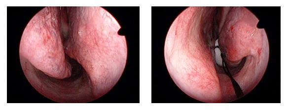 写真7:術前の右鼻腔と左鼻腔