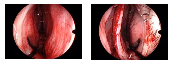 写真8:術後の右鼻腔と左鼻腔